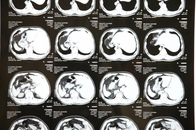 脳のサイズ違いレントゲン